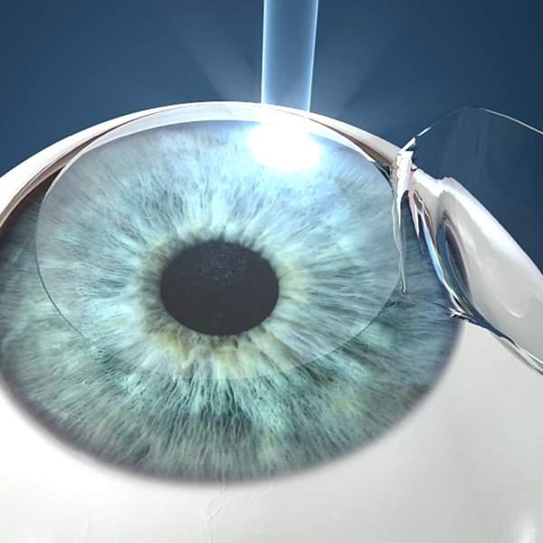 8d4e86fcc0 La cirugía refractiva LASIK, actúa modificando la curvatura corneal para  que las imágenes vuelvan a formarse nítidas sobre la retina.